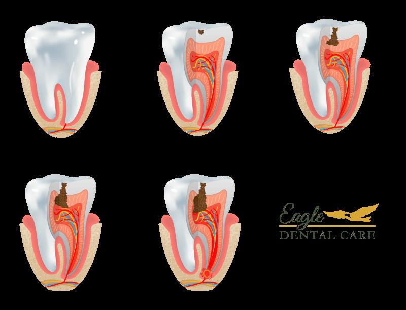 Cavities - Eagle Dental Care
